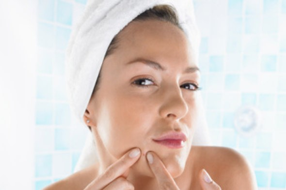 Five Tips on How to Deal with Adult Acne Naturally
