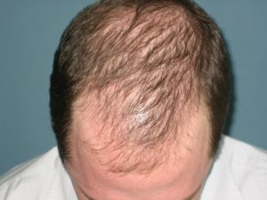 cure for baldness