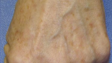 naturally fade age spots on face
