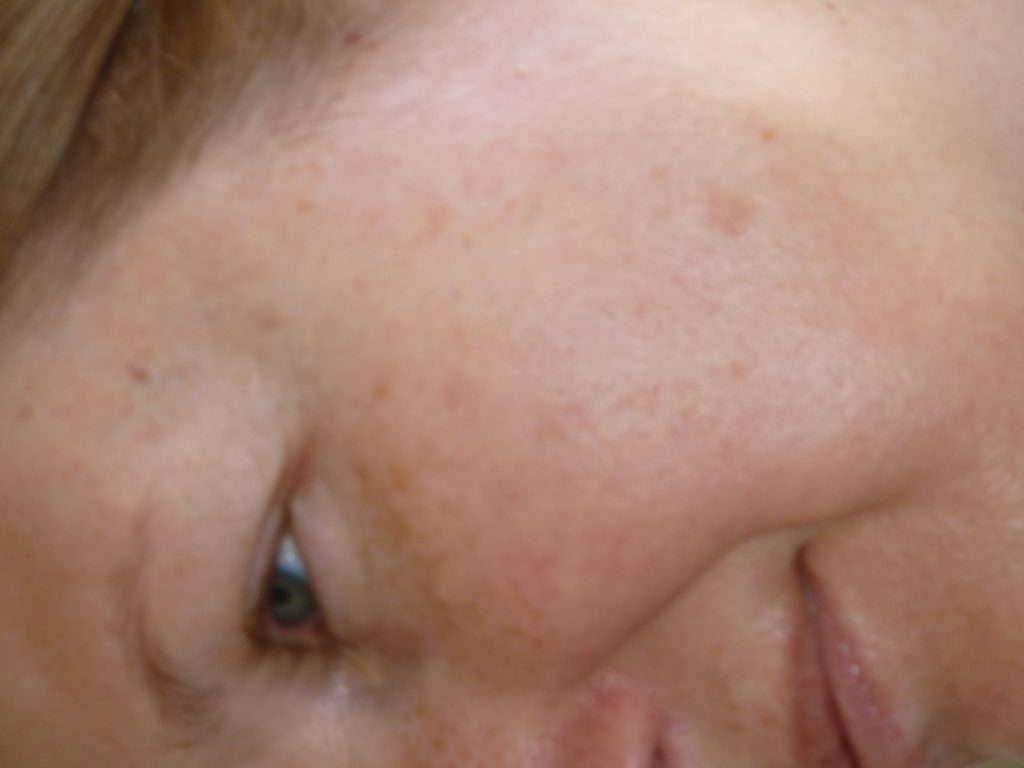 How To Remove Age Spots On Face Naturally