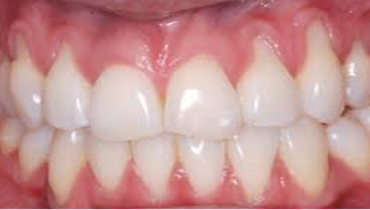 Natural Remedies for Receding Gums