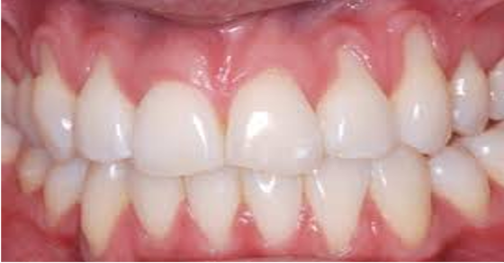 How To Get Pink Gums Naturally At Home