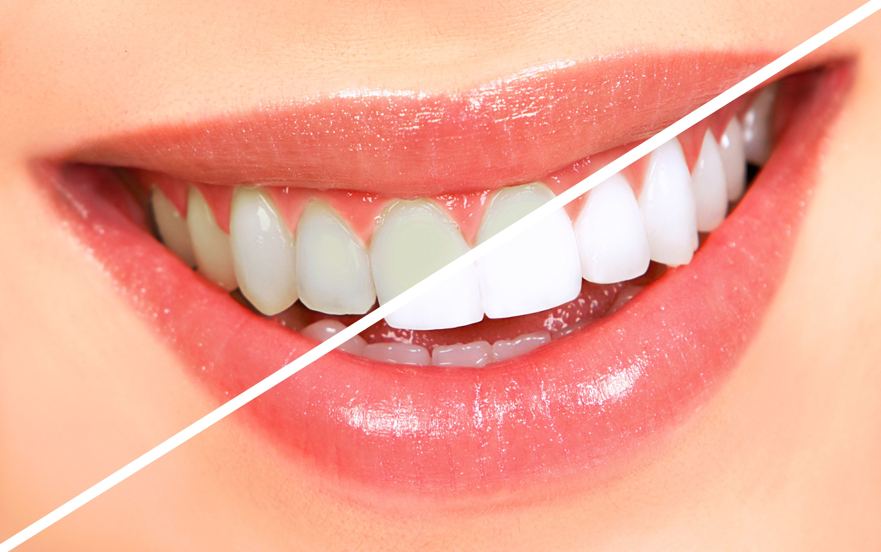 How to Whiten Teeth to Look Younger