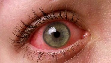 Contact lenses may cause serious eye infections