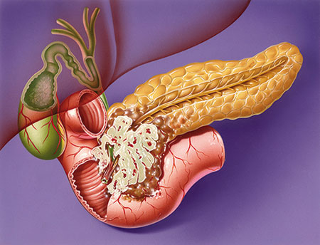 Latest Anti-Aging News: Better Survival Rate for Pancreatic Cancer Patients with Folforinex