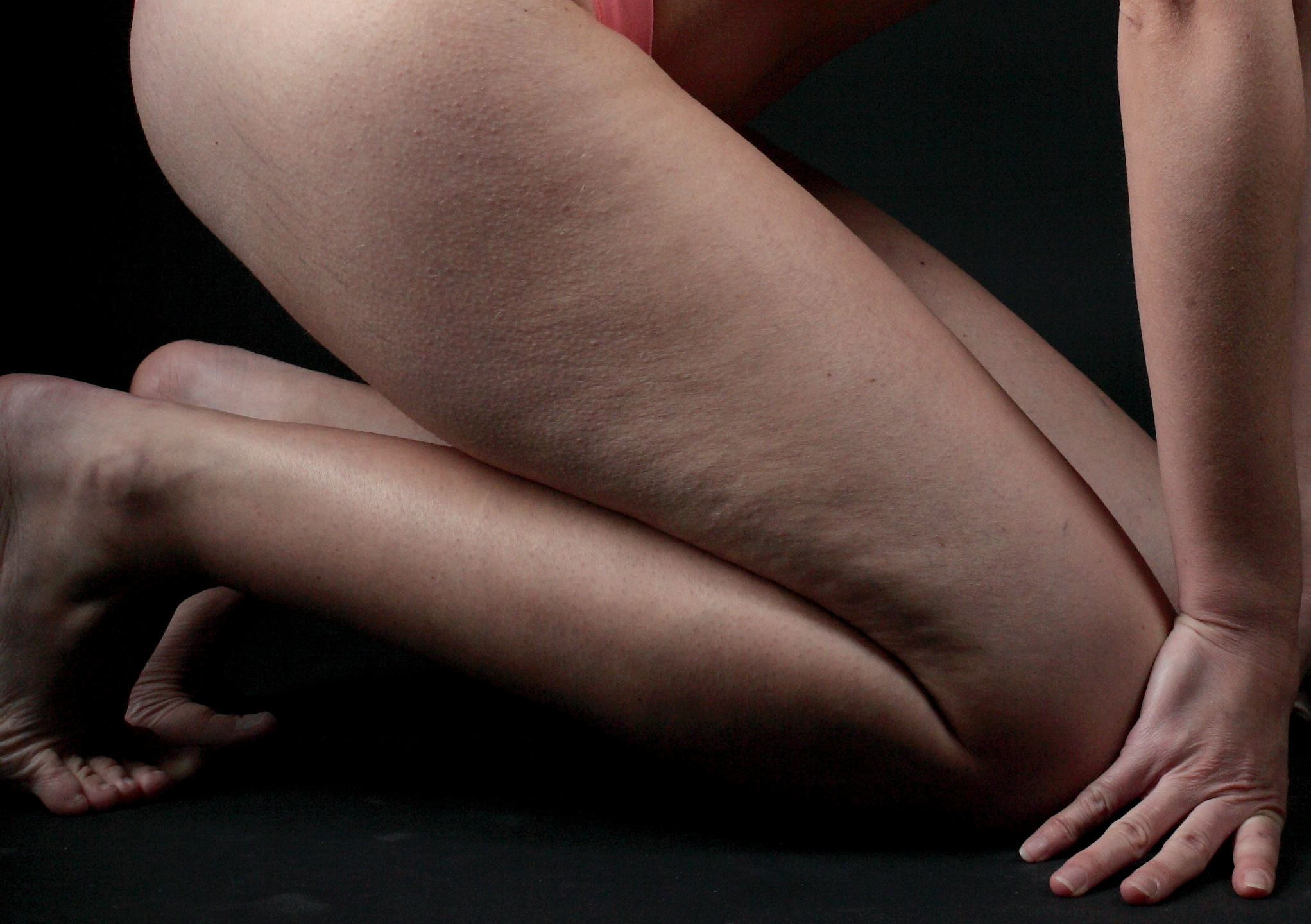 Celebrity Way to Get Rid of Cellulite