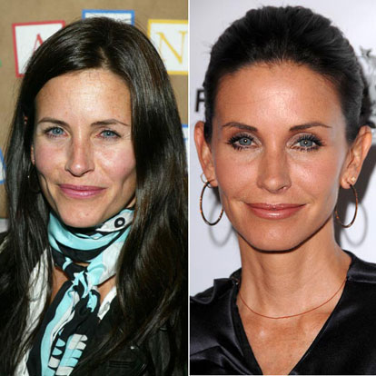 Celebrity Cosmetic Surgery Before and After Pictures