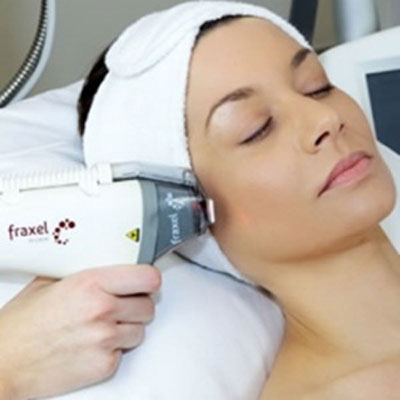 Fraxel Laser Treatment for to Erase Wrinkles