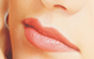 Lip Augmentation for Plump Wrinkle-Free Lips