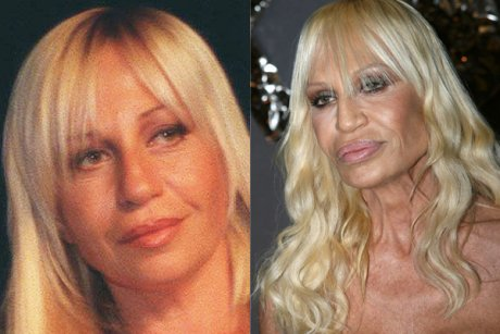 Pictures of Bad Celebrity Cosmetic Surgery FaceLifts